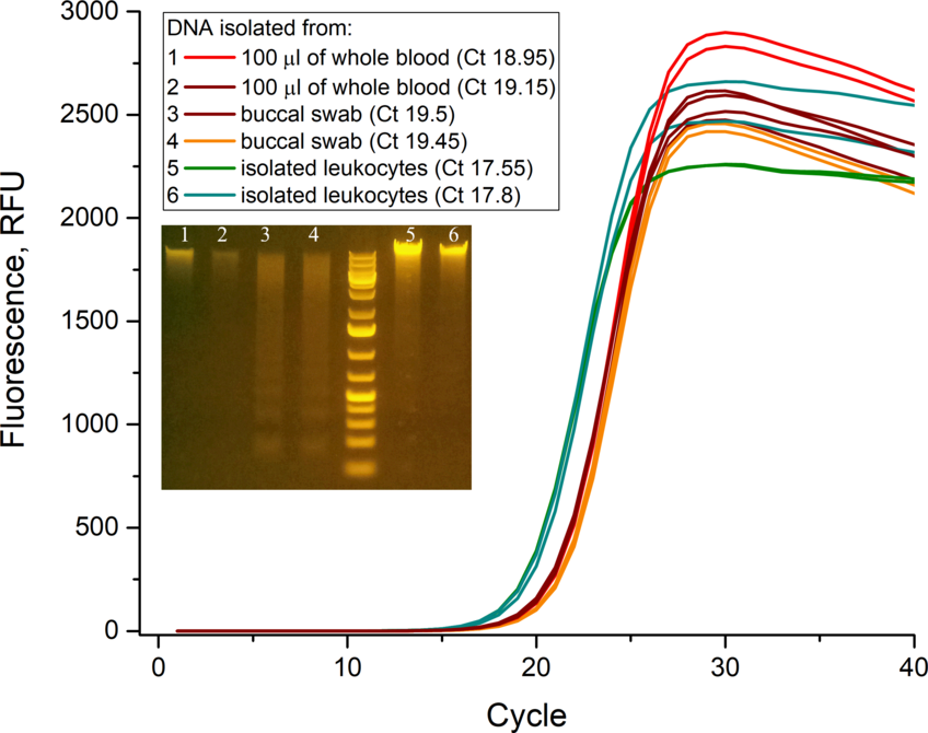 """Amplification curves of the human β-actin gene fragment. <br /> As a template for the qPCR reaction following samples were used: genomic DNA extracted from whole blood (1, 2), buccal swabs (3, 4), and leukocytes (5, 6) (the cycle threshold (Ct) and electrophoregram of the initial DNA samples are given). The size of the amplified gene fragment is 250 bp, qPCR was performed using intercalating dye <a href=""""/p/sybrgreen-realtime-pcr"""">SYBR Green I</a> (Lumiprobe). GeneRuler 1 kb Plus DNA Ladder (Thermo Fisher Scientific)."""
